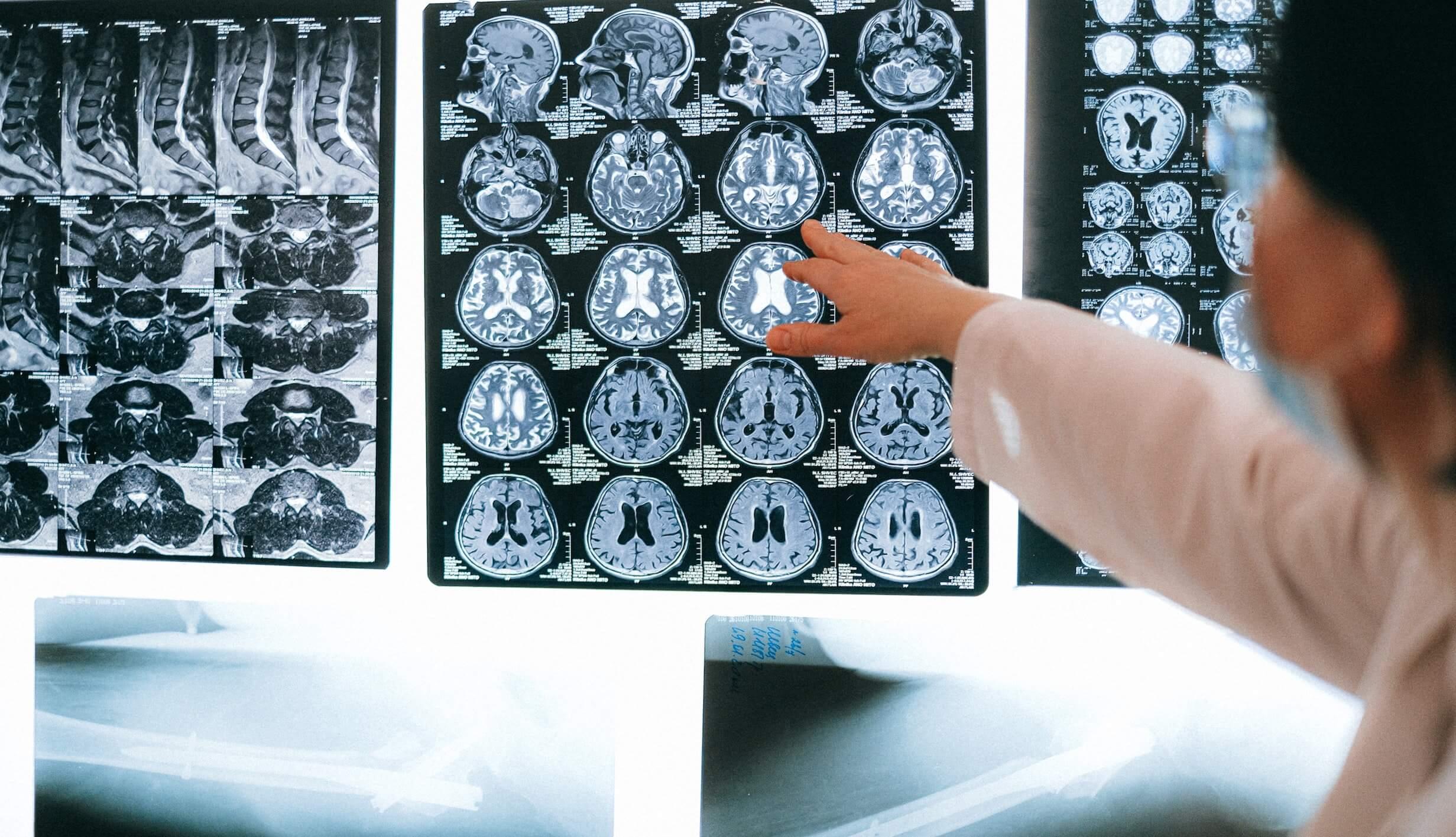 ELA neuroimagen